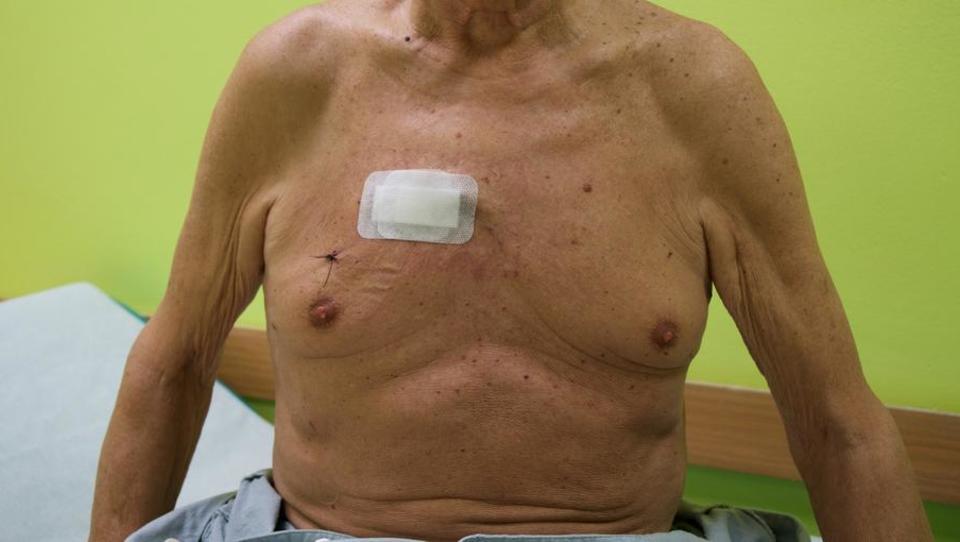 Za kirurško zamenjavo aortne zaklopke ni več treba prerezati prsnice