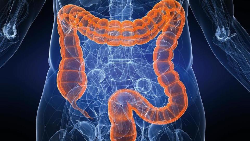 (Gastroenterologija) Terapevtske in kirurške možnosti zdravljenja bolnikov s kompleksnimi perianalnimi fistulami pri Crohnovi bolezni