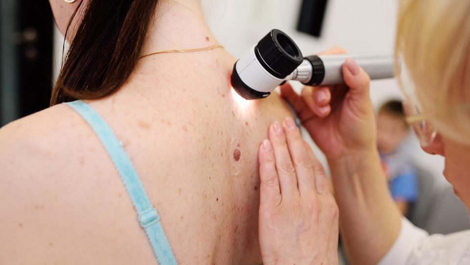 Novosti na področju adjuvantnega sistemskega zdravljenja kožnega melanoma