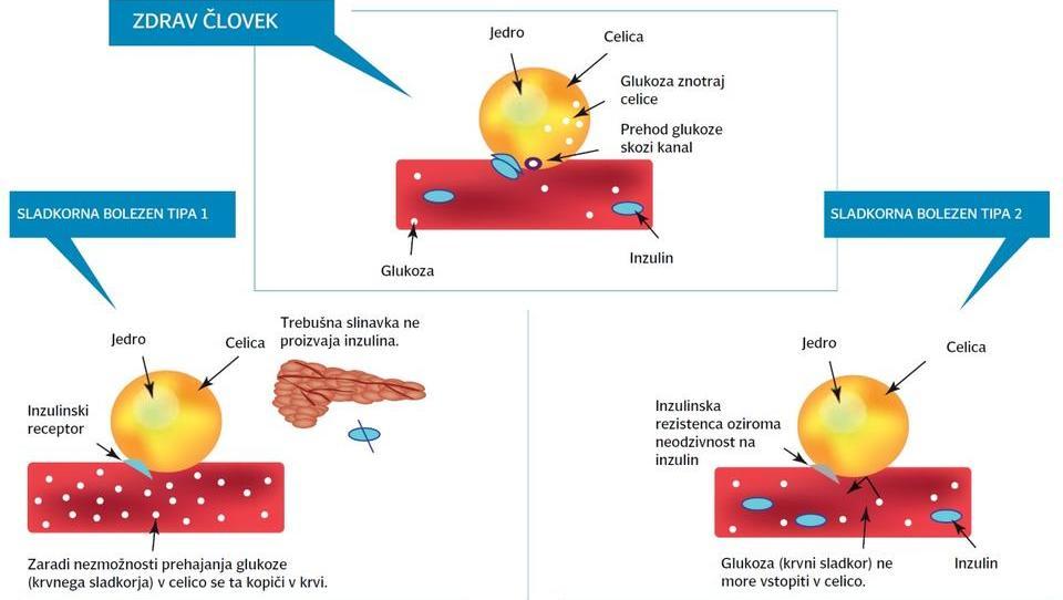 Dapagliflozin zmanjšal tveganje resnih srčno-žilnih dogodkov