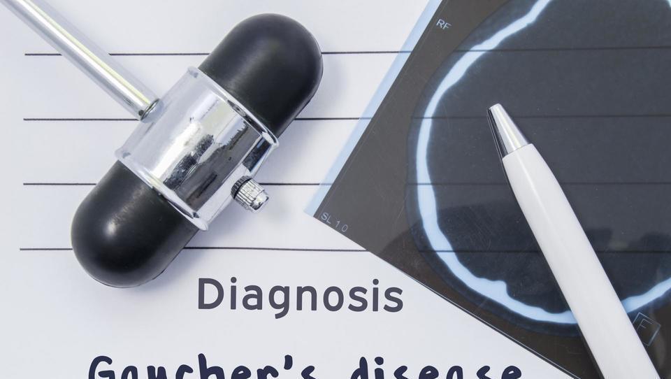Gaucherjeva bolezen: Diagnoza po naključju