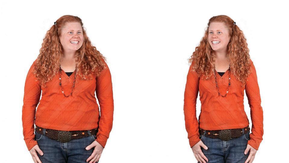Epidemija mladostniške debelosti povezana tudi s tveganjem za raka trebušne slinavke