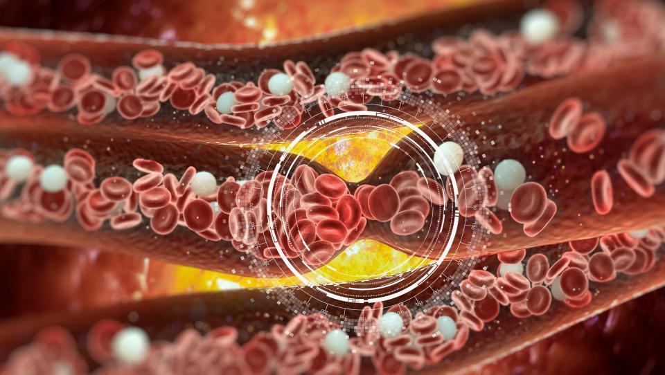 Kdaj zavreti zdravljenje z antikoagulanti?