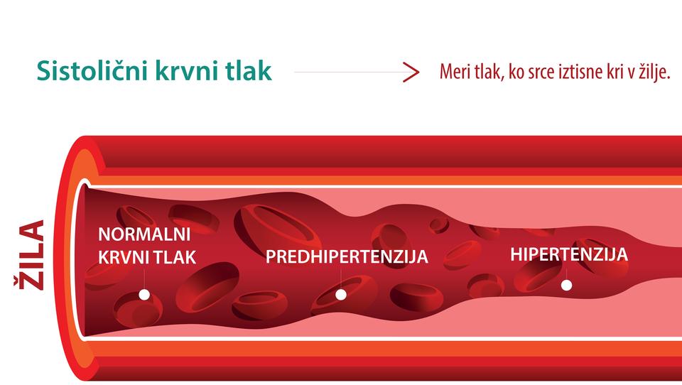 Najpogostejše napake pri predpisovanju antihipertenzivov