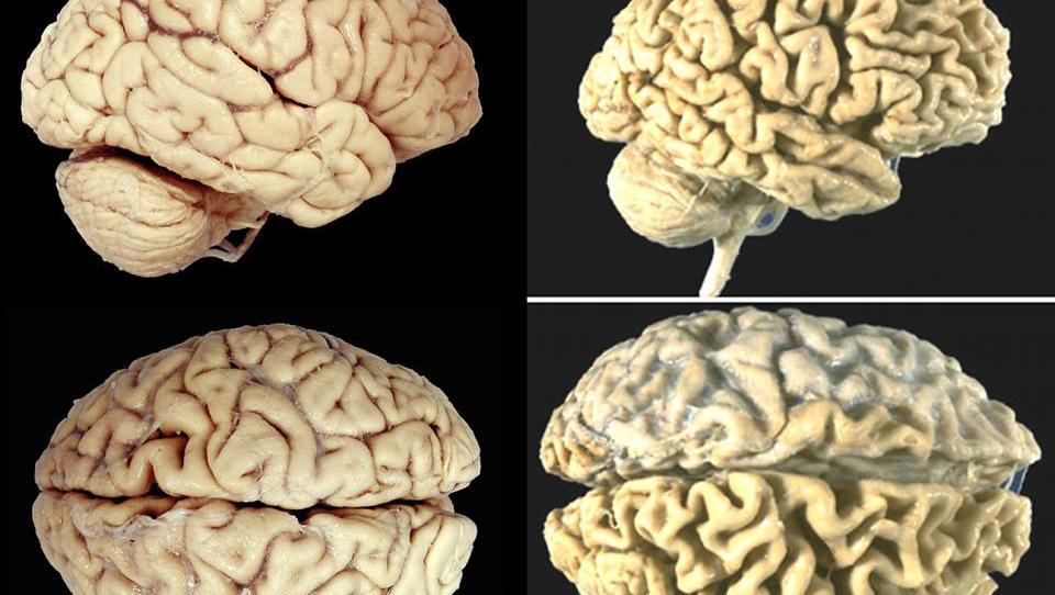 Sodelovanje nevrologov in radiologov