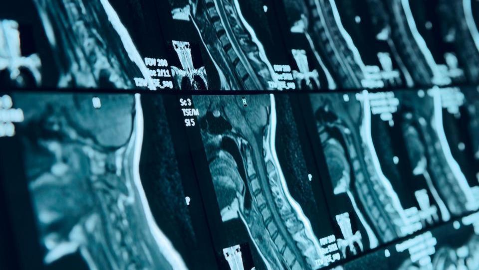 Pomen radiološkega spremljanja multiple skleroze
