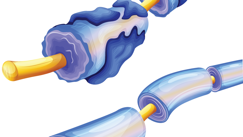 Spodbudna analiza obporodne bolezenske aktivnosti pri multipli sklerozi
