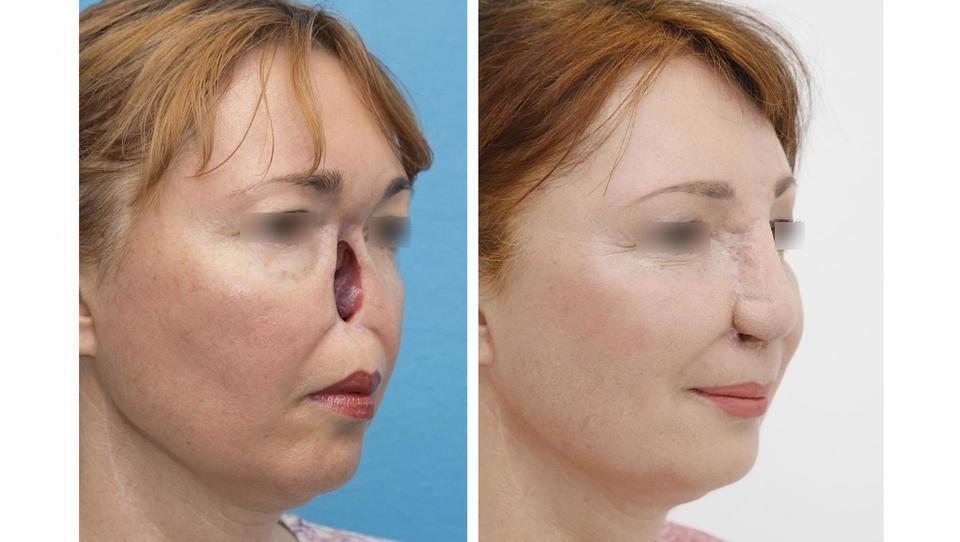 Kaj vse stoji za strokovnim dosežkom, popolno rekonstrukcijo nosu