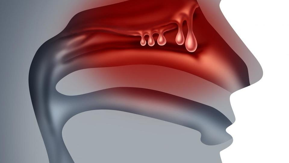 Prvo biološko zdravilo proti kroničnemu rinosinuzitisu z nosno polipozo?