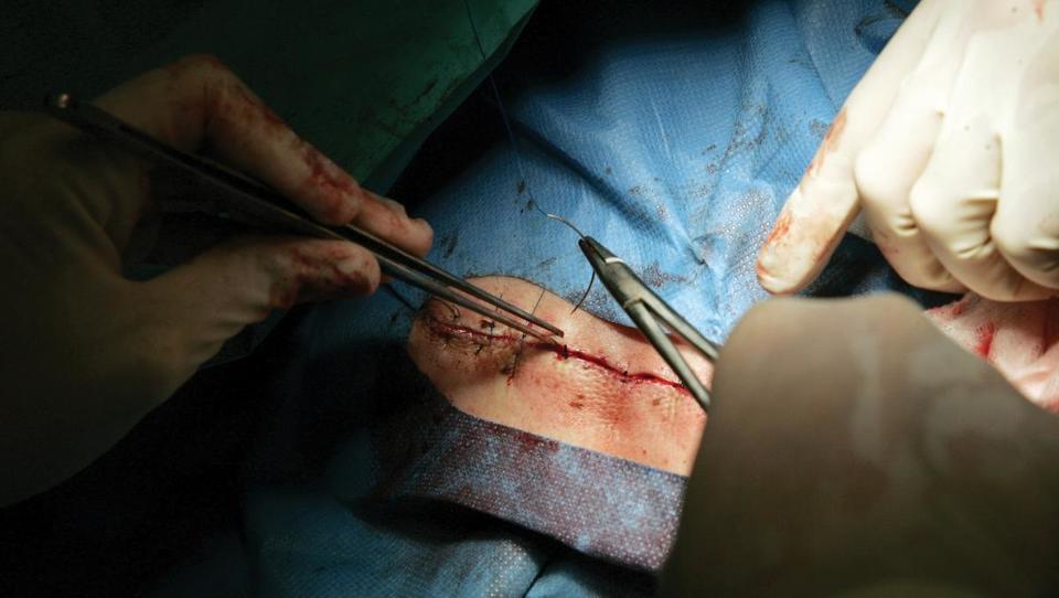 Dodatek daratumumaba izboljšal rezultate zdravljenja bolnikov s ponovitvami multiplega mieloma (RRMM)