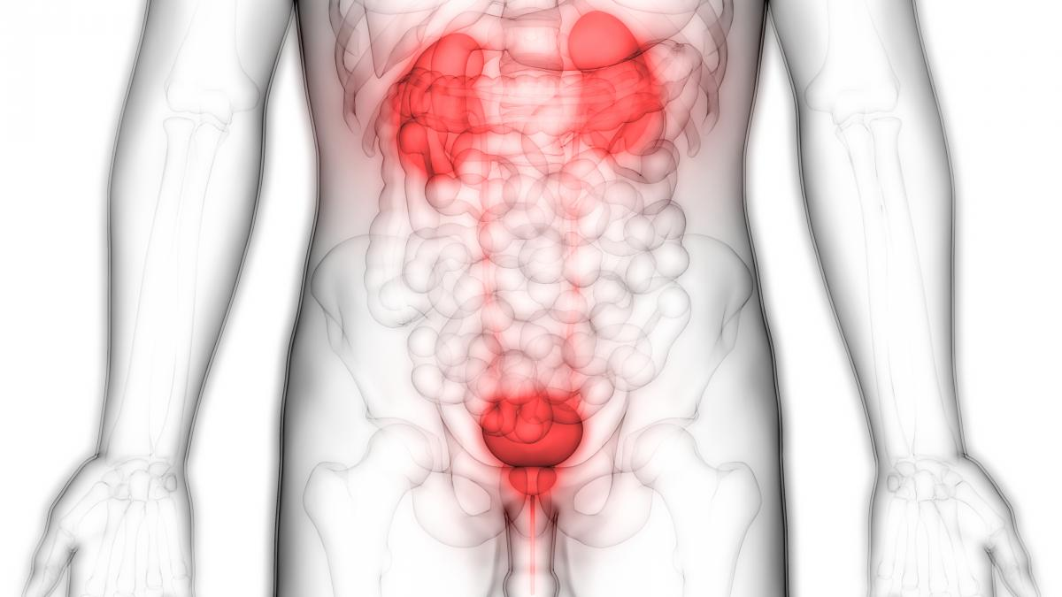 Dobrobit za bolnike z napredovalim rakom sečnega mehurja