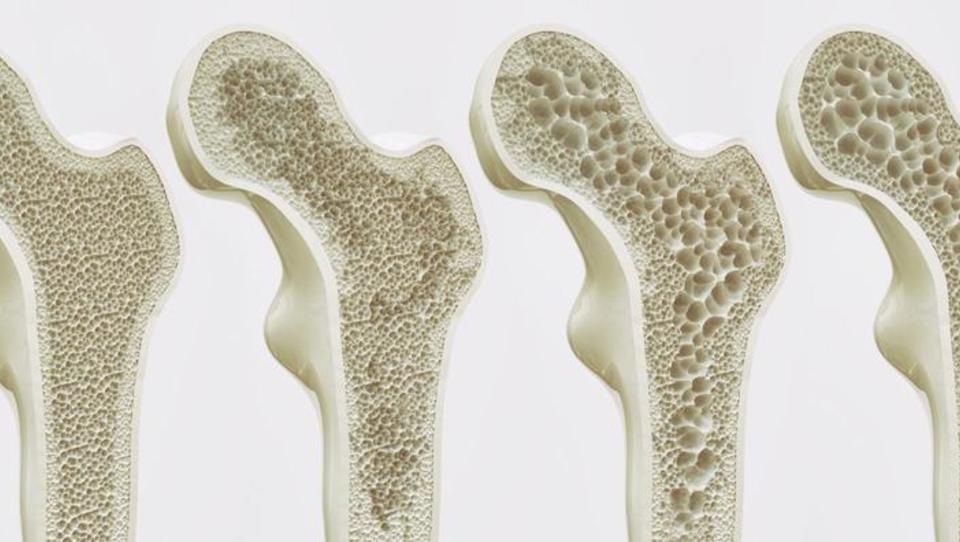 Obravnava osteoporoze v Sloveniji sledi tudi novim strokovnim usmeritvam