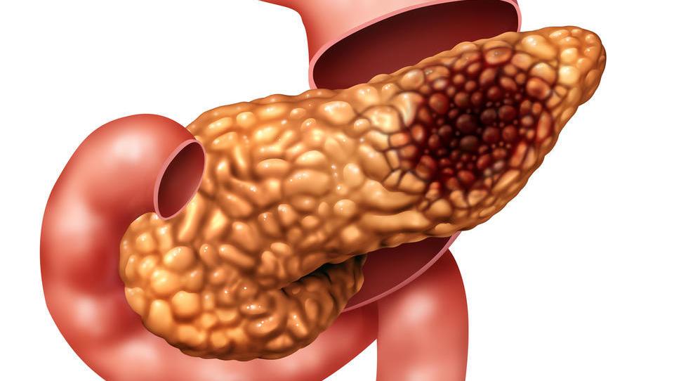 Novosti v zdravljenju raka trebušne slinavke