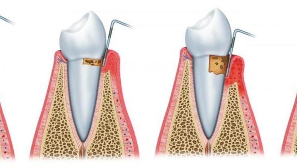Urejanje parodontalne bolezni nista le dva obiska ustnega higienika