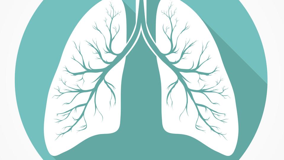 Bo NELSON odprl poti do presejanja pljučnega raka?