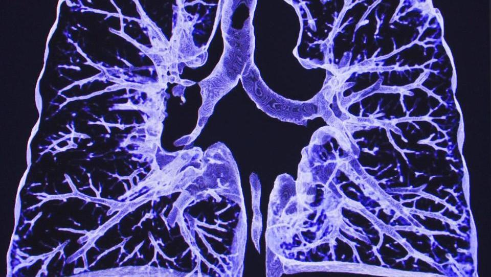 Personalizirana imunoterapija raka pljuč – sanje ali resničnost?