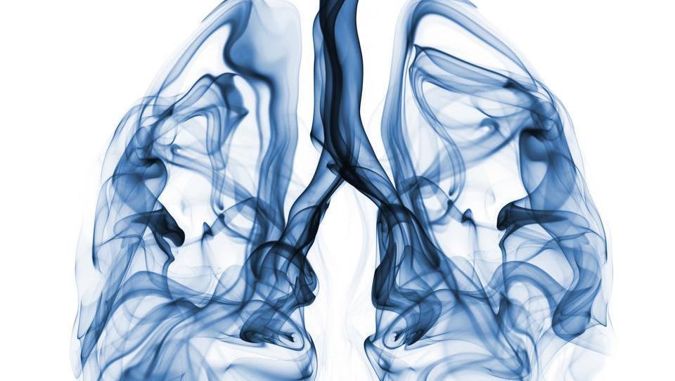 Slabi rezultati presejanja za raka pljuč v ZDA