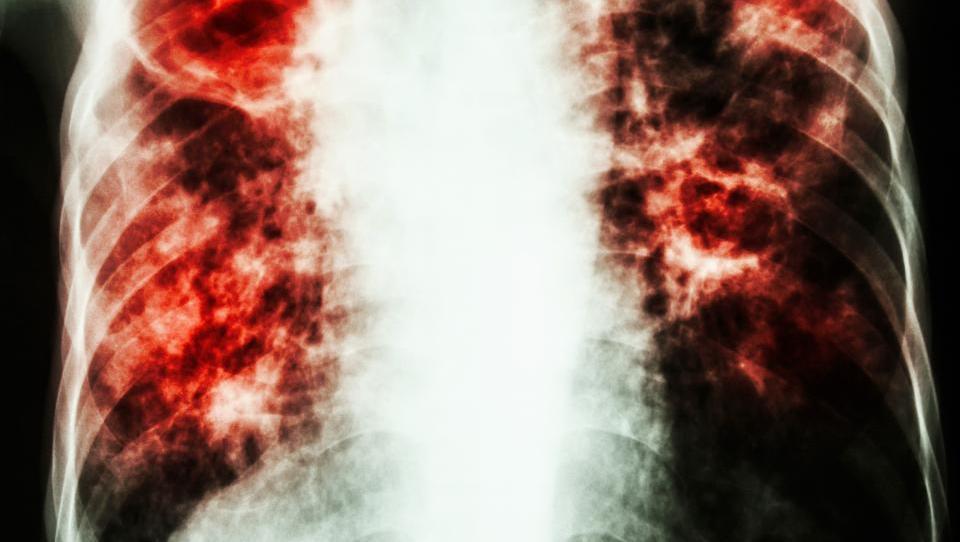 Nove terapevtske možnosti za bolnike z intersticijsko pljučno fibrozo