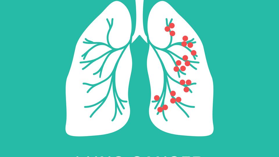 V zdravljenje stadija III raka pljuč prihaja novo zdravilo