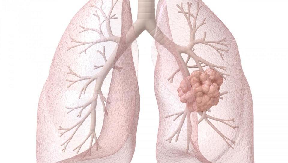 (imunoterapija pljučnega raka) Kombinacije z imunoterapijo ali hočemo več