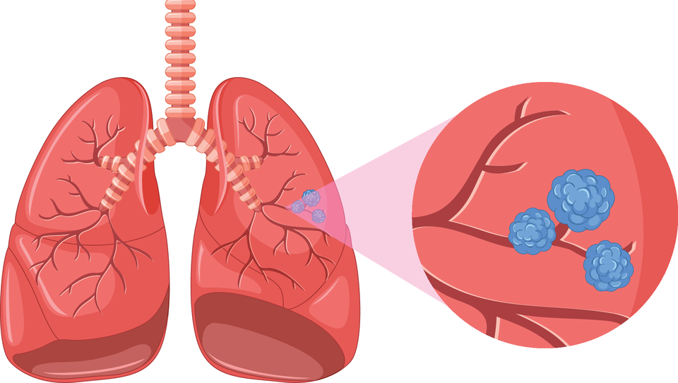 Vznemirljivo obdobje po raziskavi FLAURA v zdravljenju raka pljuč