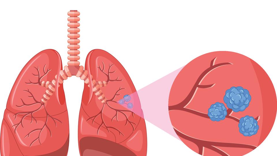 (Onkologija) Durvalumab uspešen tudi pri drobnoceličnem raku pljuč