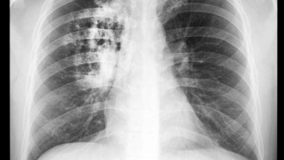 Izzivi odkrivanja genetskih sprememb pri bolniku