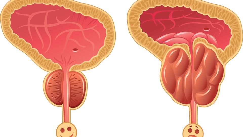 Še dileme o PSA za presejanje raka prostate