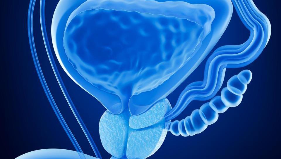 Se spreminja praksa zdravljenja raka prostate?