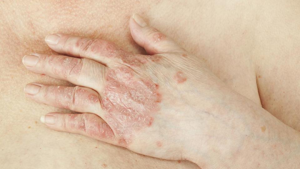 Sodobna obravnava psoriatičnega artritisa: zdravljenje je treba začeti že na primarni ravni