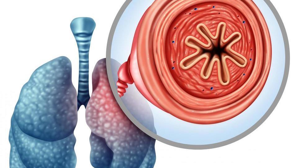 Kako ujeti več bolnikov s KOPB v zgodnejši fazi bolezni?