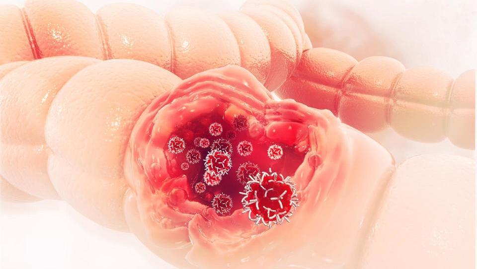 Potencial novega proteina pri zgodnjem ugotavljanju raka debelega črevesa