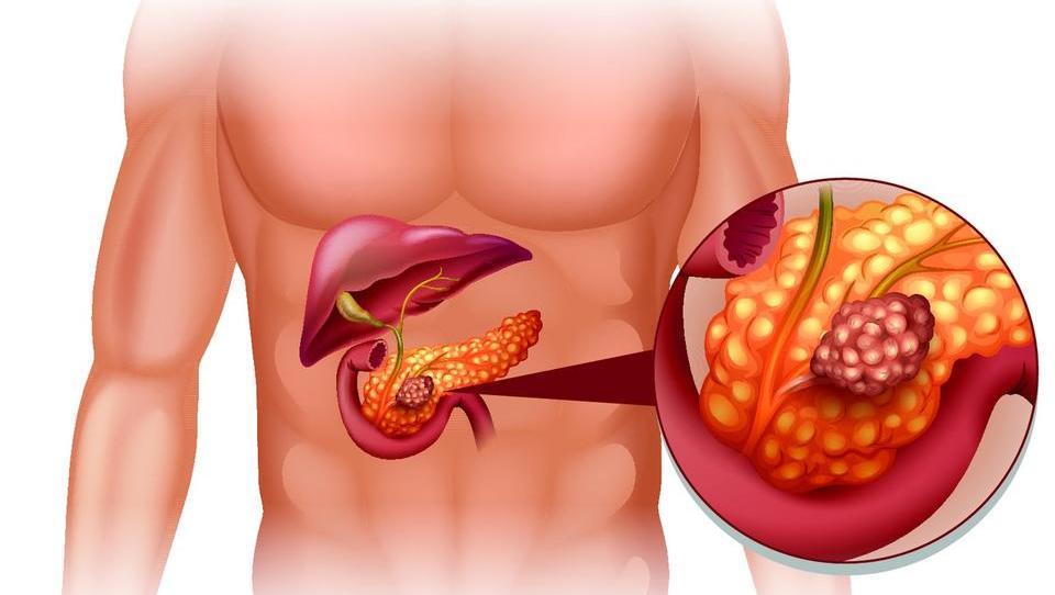 Brez učinkovitega presejanja raka trebušne slinavke