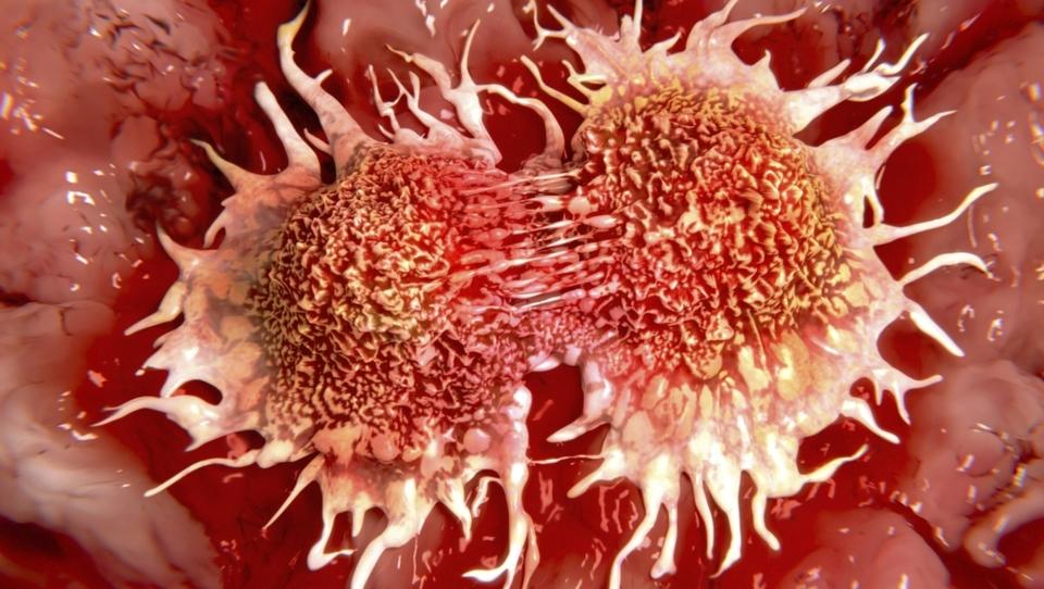 12 nasvetov proti raku