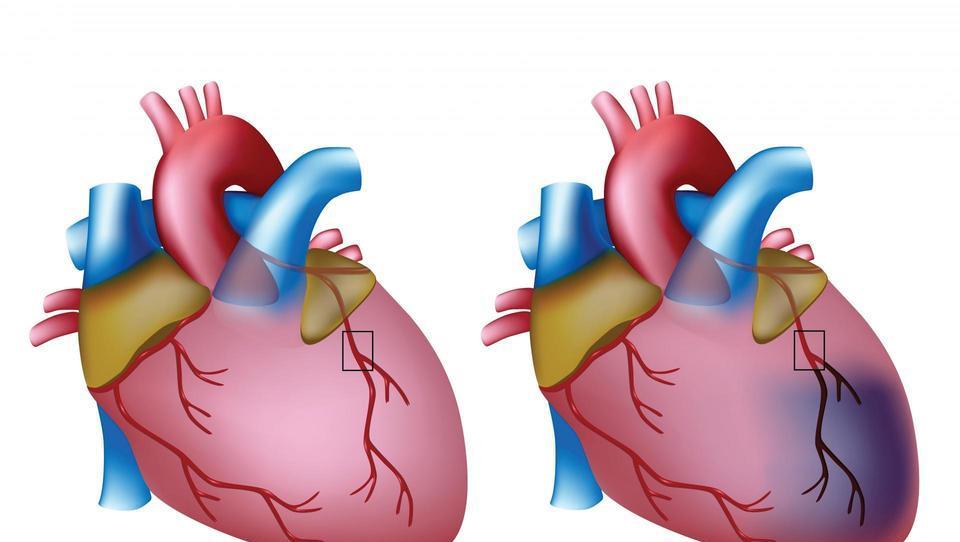 Zgodovinski trenutek za srčni troponin