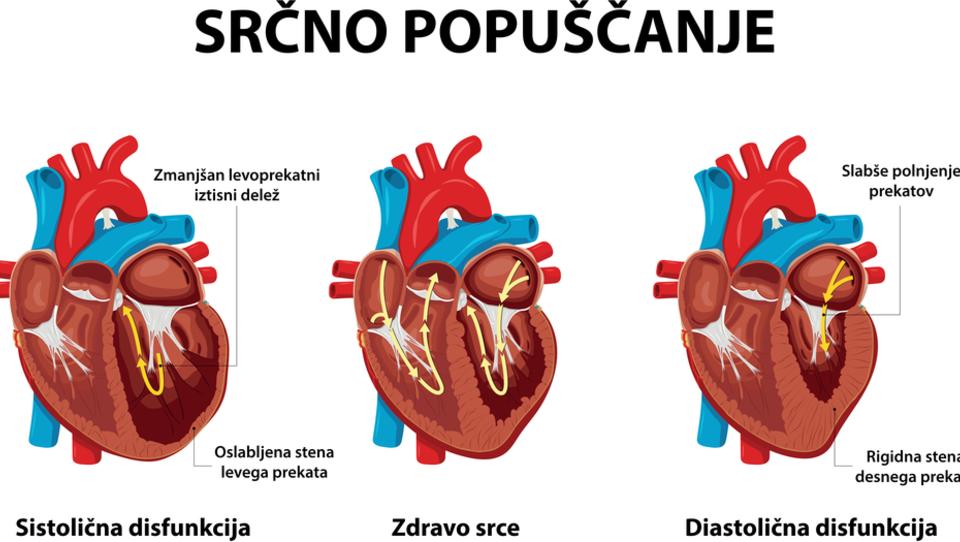 Brez specifičnega zdravila za bolnike z diastoličnim popuščanjem srca