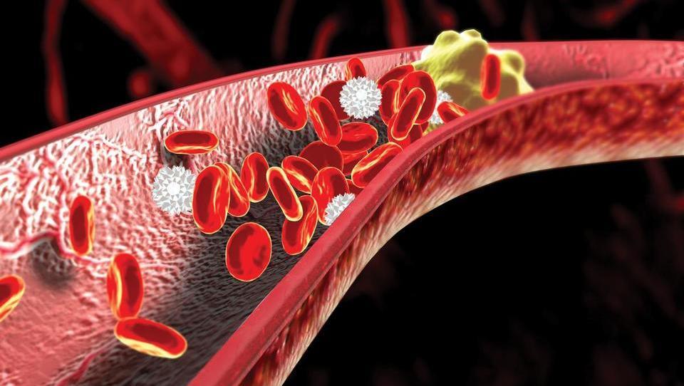 Prenizek holesterol HDL pri mlajših kot označevalec tveganja za srčno kap?