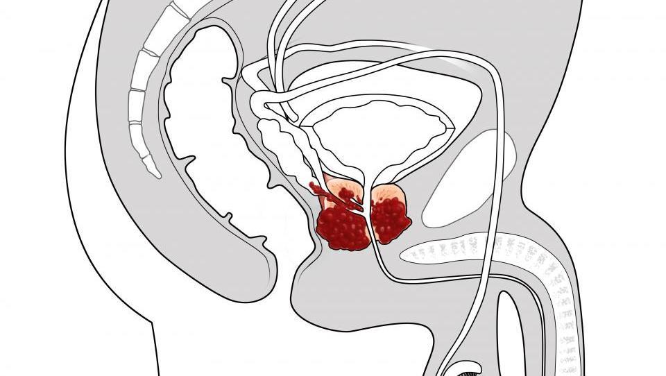 Анальный секс у мужчин от простатита простатит сыпь на головке